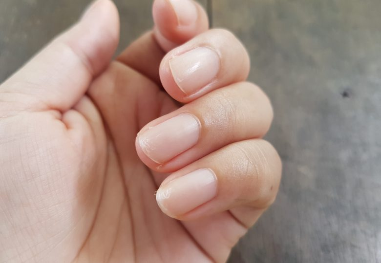 Nail Problem