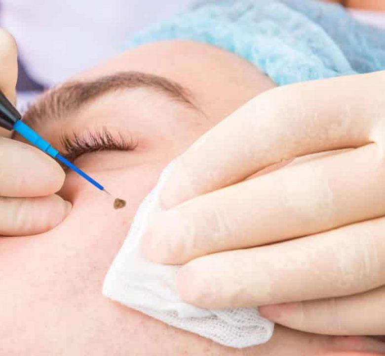 electrocautery-treatment-fb